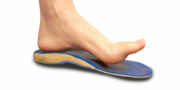 Foot orthotics and running